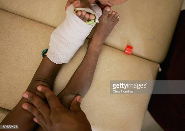 A child with polio has his leg braced in a cast at the polio ward of Murtala Muhammed Public Hospital April 13 2005 in Kano Nigeria Polio a disease...