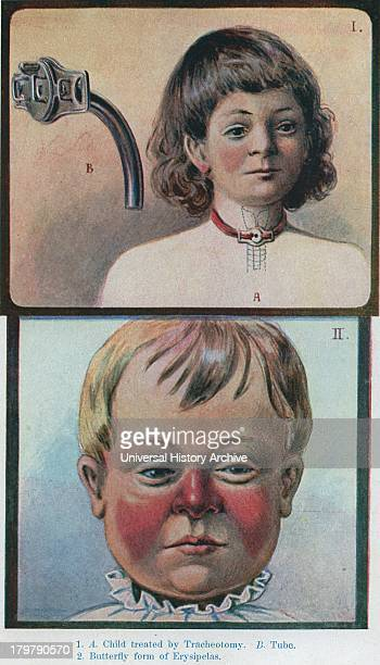 Child with tracheotomy and Child withbutterfly Erysipelas Illustration 1905