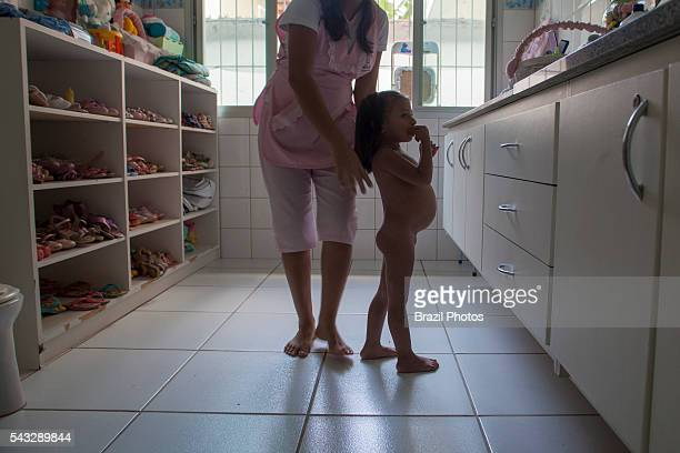 Child with worm infection, Manaus city, north Brazil - intestinal parasites are prevalent in tropical areas and can aggravate malnutrition by...