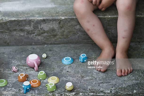 childhood bruises - insectenbeet stockfoto's en -beelden