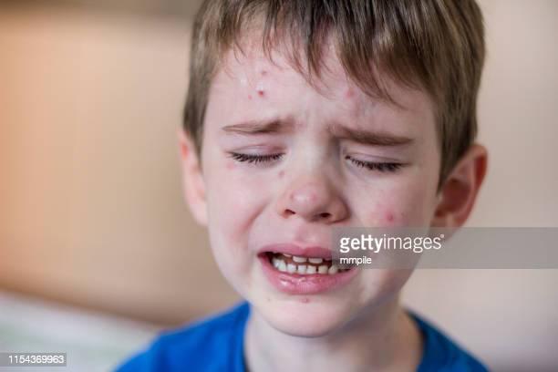 la molestia infantil - virus de la viruela fotografías e imágenes de stock