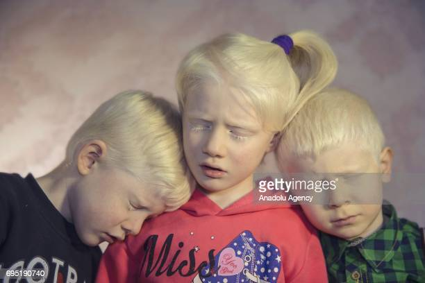 Children with albinism Cem Cemre Akpinar and their friend Furkan Ozorman pose for a photo in Istanbul province of Turkey on December 18 2016 Albinos...