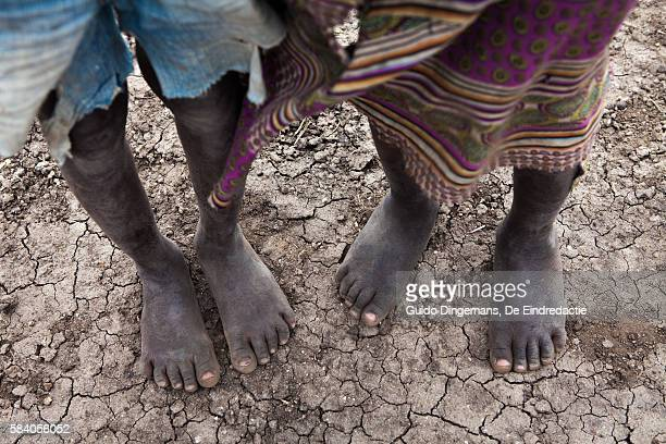 Children's feet on cracked earth in Malawi during the drought of 2016