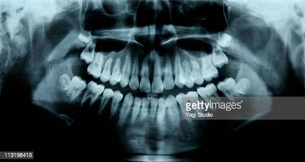 child's dental x-rays - radiographie photos et images de collection