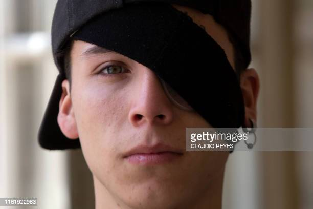 Chilean student Carlos Vivanco who was injured in his eye due to police violence while protesting poses at a hospital Santiago on November 11 2019...