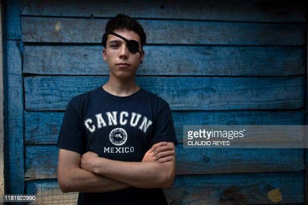 Chilean student Carlos Vivanco who was injured in his eye due to police violence while protesting poses for a picture at his home in Santiago on...