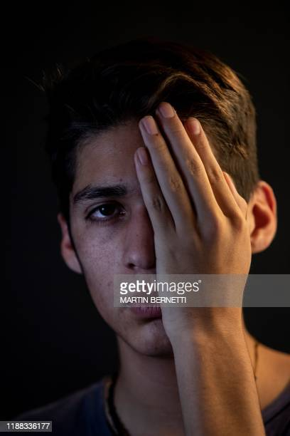Chilean student Edgardo Navarro who was reached by a pellet from the police during a protest and lost his left sight covers his eye as he poses for...