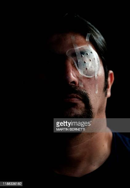 Chilean work supervisor Nelson Iturriaga who was reached by a pellet from the police during a protest and lost his left sight poses for the camera in...