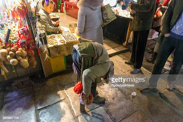 china, guangxi province, yangshuo village - scoliosis stock photos and pictures