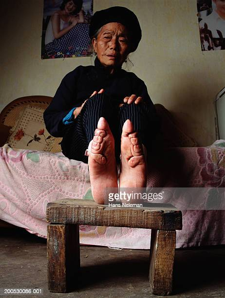 china, senior woman showing feet that have been bound since childhood - women tied to bed stock photos and pictures