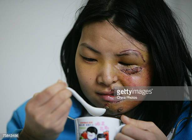 Chinese girl Li Yan who suffers from face atrophy drinks water before doctors remove stitches from the wound at Chongqing Emergency Medical Center on...