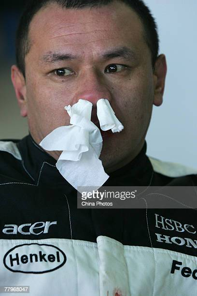 Chinese man Hou Jun looks on with tissue stuffed in his bleeding nose after driving a Jetta car into a barrier during a live crash test in the...