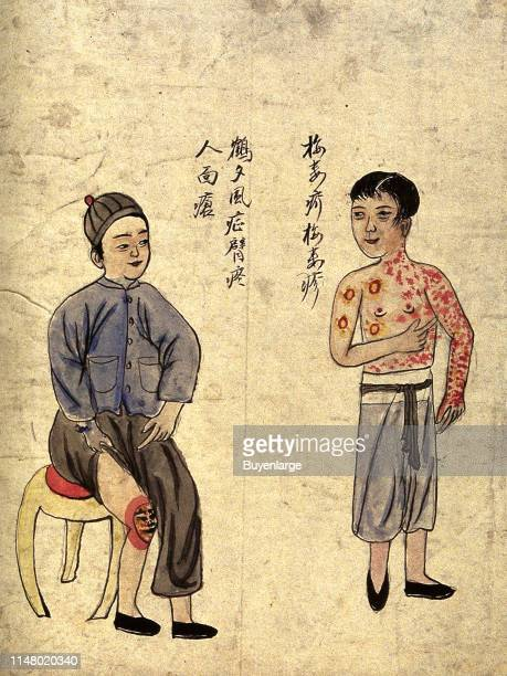 Chinese men afflicted with Gonorrhea
