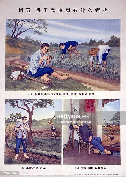 Chinese poster shows three different images the are designed to raise awareness of hookworm infections Each image shows a farmer experiencing...