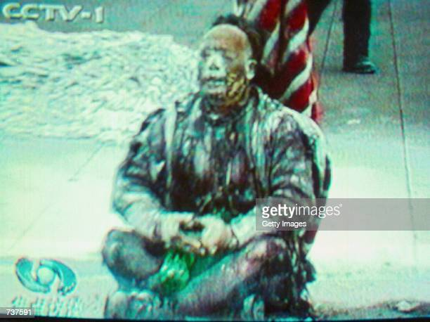 Chinese television footage described as showing a badly burned Falun Gong member after he set himself on fire January 23 2001 in Beijing's Tiananmen...