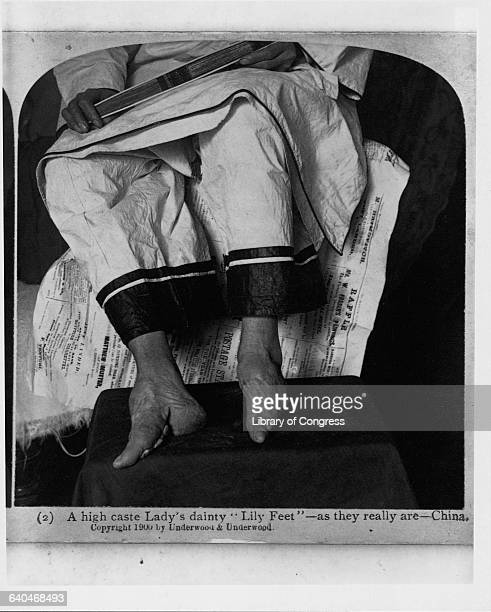 A Chinese woman shows her deformed bound feet Foot binding was a common practice in China for over 1000 years before it was outlawed in 1911