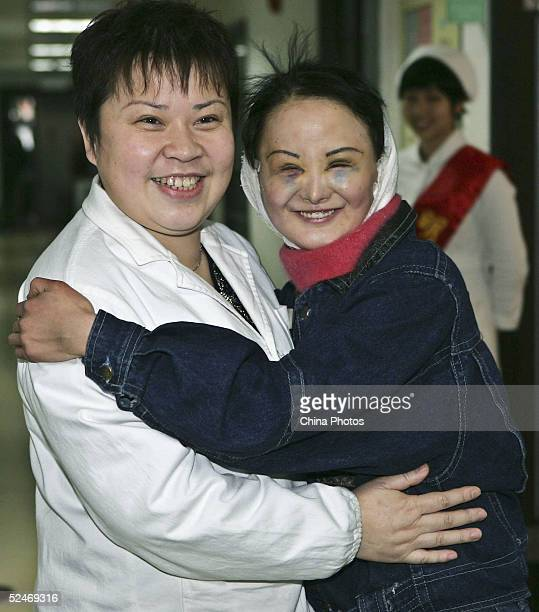 Chinese woman Zhang Jing known as the Ugly Girl hugs the doctor who operated the cosmetic surgery on her at a hospital on March 23 2005 in Shanghai...