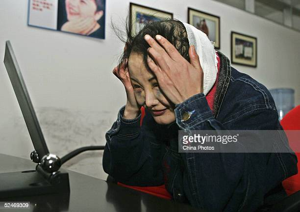 Chinese woman Zhang Jing known as the Ugly Girl looks into a mirror after doctors removed the stitches from her fourth session of cosmetic surgery at...