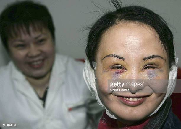 Chinese woman Zhang Jing known as the Ugly Girl smiles after doctors removed the stitches from her fourth session of cosmetic surgery at a hospital...