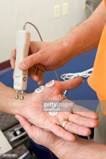 Chiropractor Performing a Median NCV (Nerve Conduction Velocity) Test