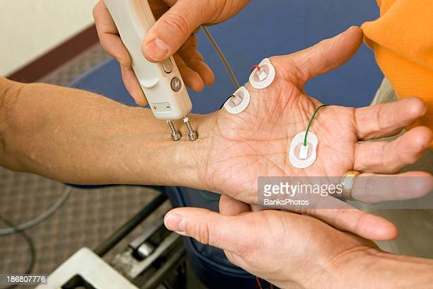 chiropractor performing a median ncv (nerve conduction velocity) test - human nervous system stock pictures, royalty-free photos & images