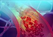 Cholesterol blocking artery