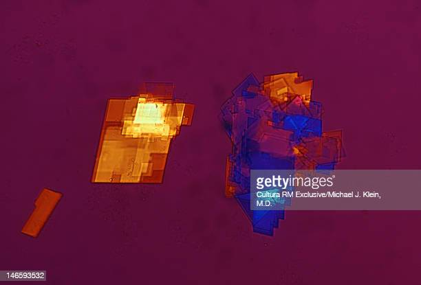 cholesterol crystals in joint fluid - klein foto e immagini stock
