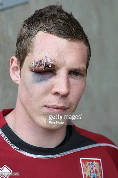 Chris Dunn of Northampton Town poses with an eye injury sustained during the League Two League match between Northampton Town and Bury on April 12...