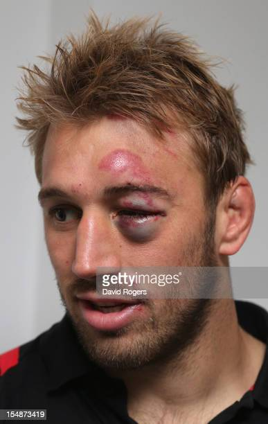 Chris Robshaw the Harlequins and England captain shows the injury to his left eye sustained during the Aviva Premiership match between London Irish...