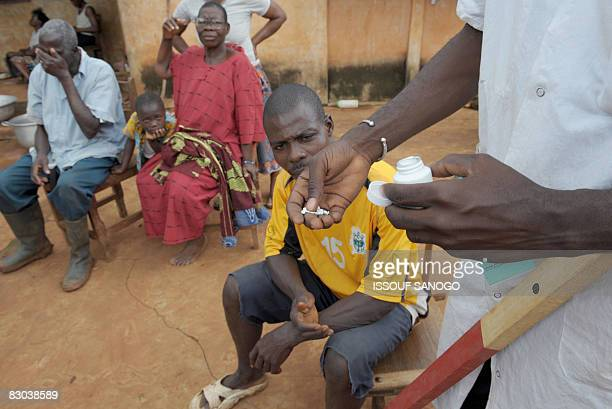 Christophe KOFFI A nurses distributes medecine ivermectin against onchocerciasis or river blindness caused by a parasitic worm and spread by the bite...