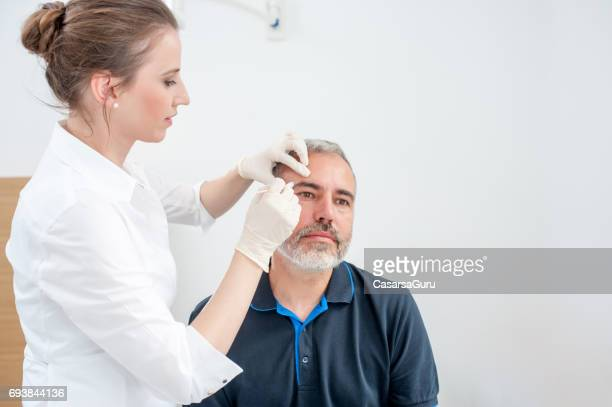 chryotherapy used to removed an aged spot - liver spot stock photos and pictures