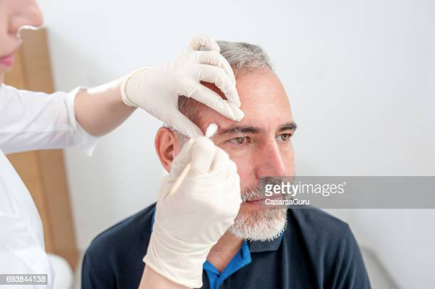 Chryotherapy used to Removed an Aged Spot