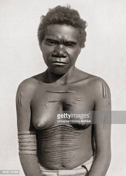 Cicatrization or scarification The custom of making scars on the body In this case the subject is an Australian Aboriginal woman Scars are often...