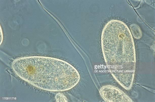 Ciliated Protozoan genus Paramecium seen under a microscope at x100x25 magnification
