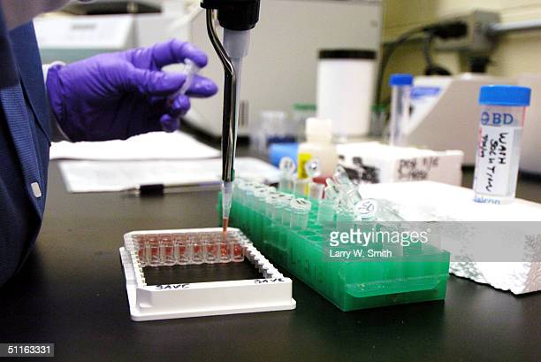 Cindy ChardBergstrom a Micro Biologist III at Kansas State University applies samples during a check test for Bovine Spongiform Encephalopathy or Mad...