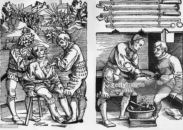 Circa 1600 On the left a doctor cauterises a man's arrow wound on the edge of a battlefield on the right a patient's leg wound is cauterised with a...