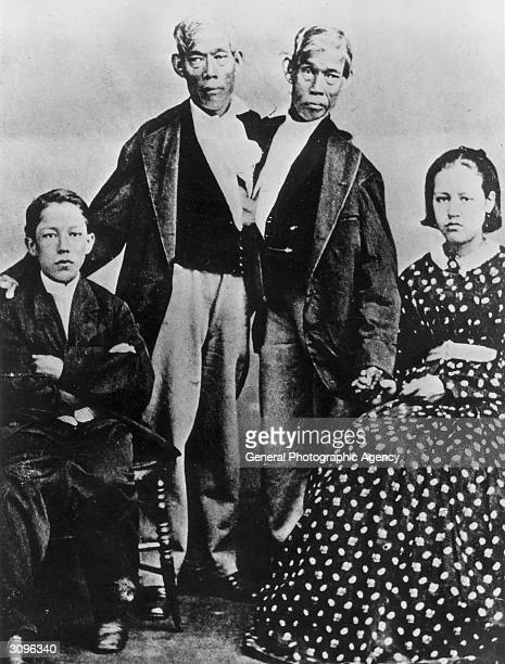 The most famous Siamese twins Chang and Eng Bunker after whom the rare condition is named Born in Siam they married two sisters and had nine children...