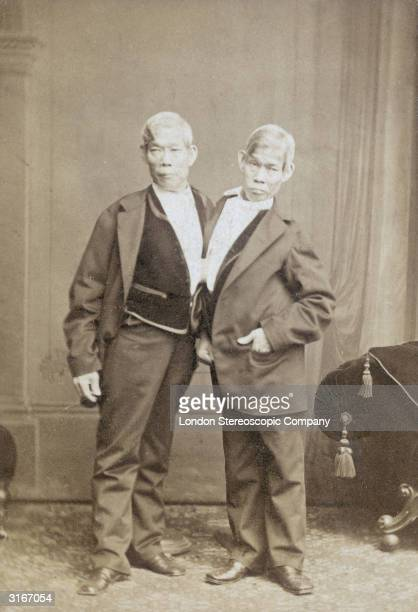 The most famous of Siamese twins Chang and Eng Bunker after whom the rare condition is named Born in Siam they married two sisters and had nine...
