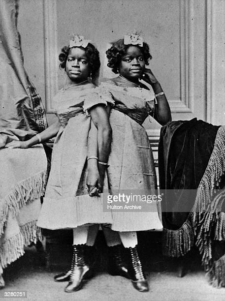 Millie and Christine McKoy a pair of Siamese twins known as the 'Twoheaded Nightingale' perform at a fun fair in Leeds Born in Carolina to African...