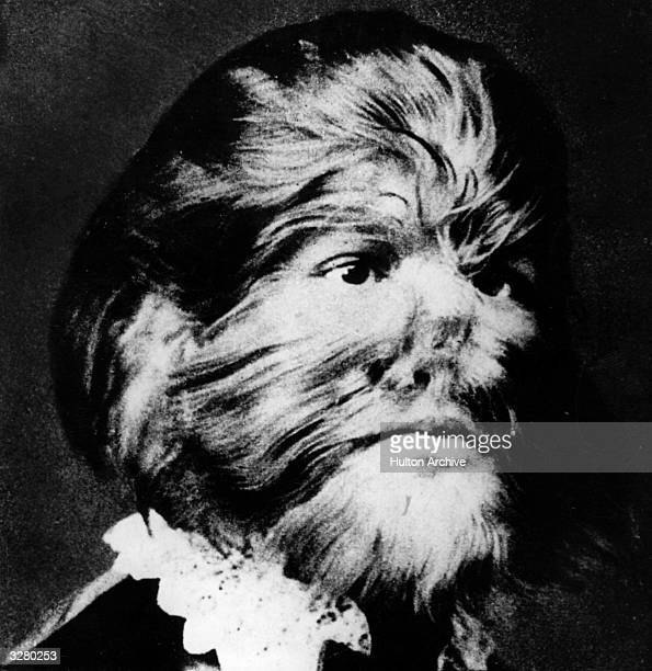 Portrait of JoJo the 'Dog faced Boy' He was named by Barnum because of his hairy face
