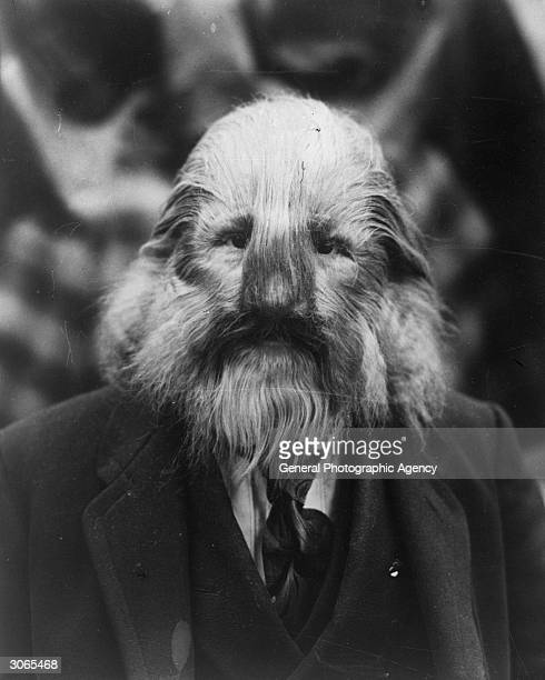 'The Lion Faced man' has never shaved in his life but a little judicious forwardcombing makes him look hairier than he really is