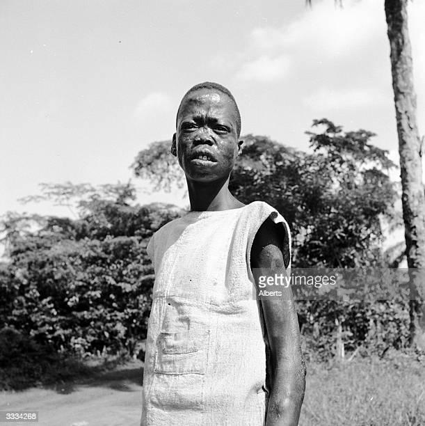 Leper at the Ganta Methodist Mission's leper colony.