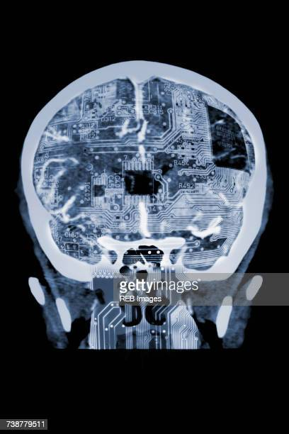 Circuit board in x-ray of skull