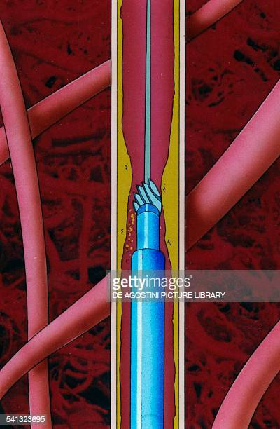 Circulatory system surgical removal of lipid plaque in an artery through a tiny drill inserted through a catheter drawing