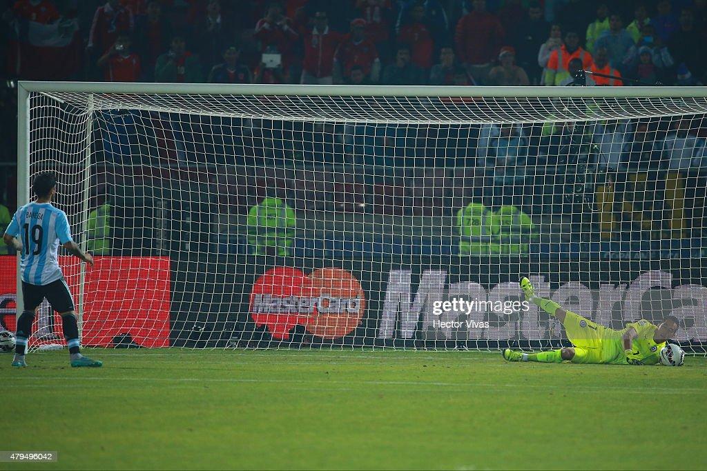 Chile v Argentina - 2015 Copa America Chile Final : Nachrichtenfoto