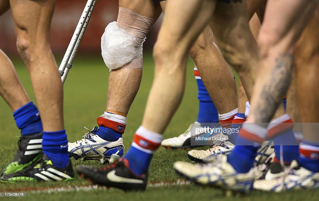 Clay Smith of the Bulldogs walks off with a knee injury after the game during the round 16 AFL match between the Western Bulldogs and the Essendon Bombers at Etihad Stadium on July 14, 2013 in Melbourne, Australia.