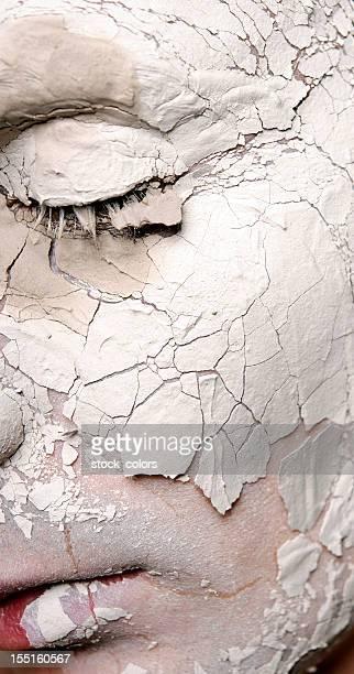 clay treatment