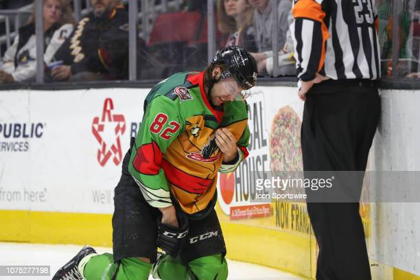 Cleveland Monsters center Kevin Stenlund reacts after taking an inadvertent stick to the face during the second period of the American Hockey League...