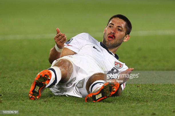 Clint Dempsey of the United States lies injured on the pitch during the 2010 FIFA World Cup South Africa Group C match between USA and Algeria at the...
