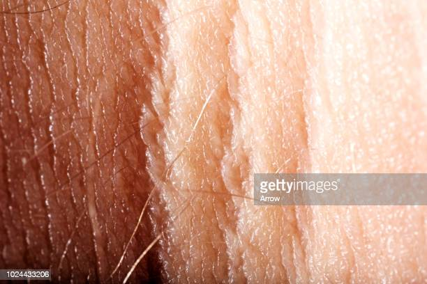 close up marco shots of body parts - shock tactics stock pictures, royalty-free photos & images